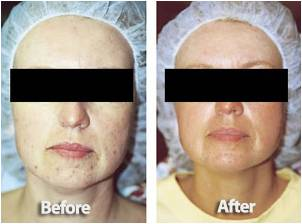 Microderm Before and After Photos