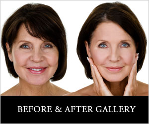 before_after treatment