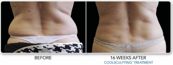 B&A-Fasano-2Set-Back-CMYK-HiRes.jpg (lbs removed).png