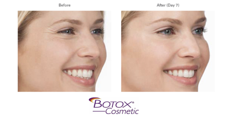 Botox Before After.png