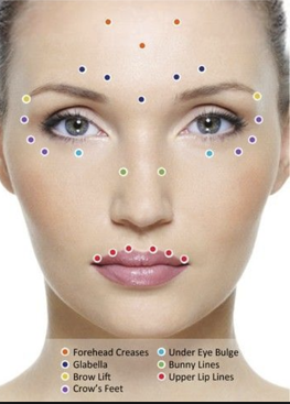 Botox Treatment Areas 2