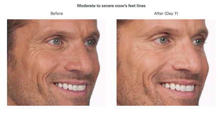 Botox Men Before, After