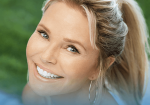 Christie Brinkley Xeomin