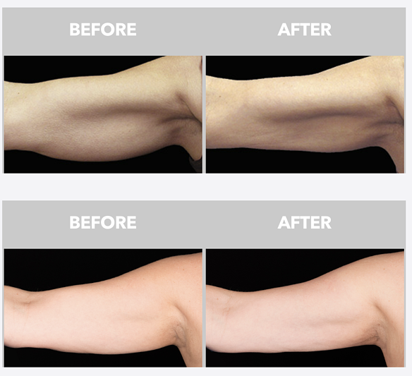 CoolSculpting for Upper Arms