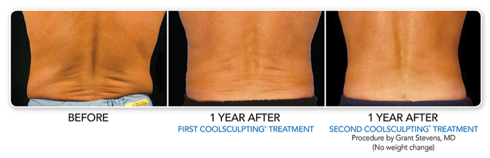 CoolSculpting_Before_After_Lovehandles.png