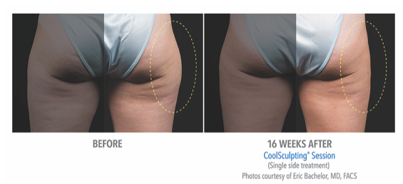 CoolSculpting_Before_After_Saddlebags.png