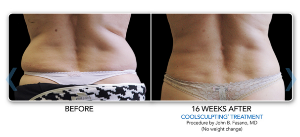 Coolsculpting_Love_Handles_Before-After.png