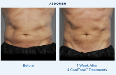 Cooltone before/after Abs for menn