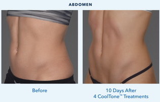 Cooltone before/after Abs for women