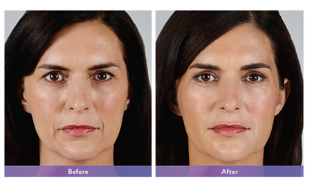 Juvederm Vollure before and after.png