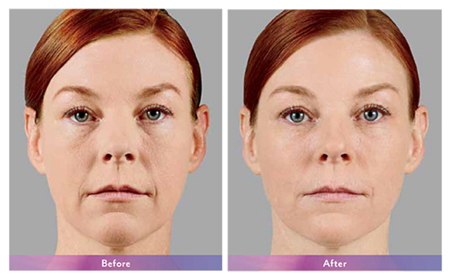 Juvederm XC Before & After.png