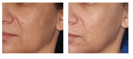 Microneedling_Before-After_Male_Cheek