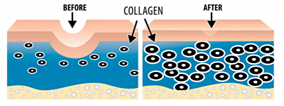 Microneedling_Collagen_Before_and_After.png