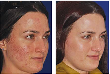 Microneedling_before_after_-_womans_face