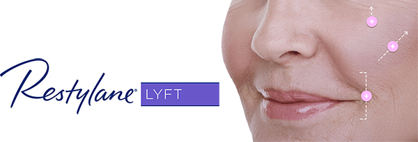 Restylane LYFT facial volumizer