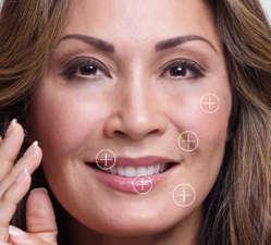 Restylane Products Model