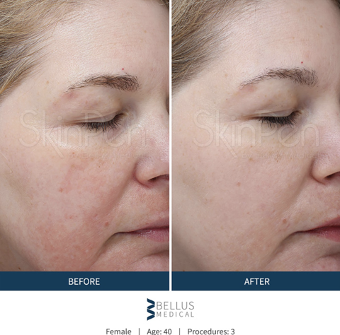 Collagen Injection Therapy Before/After