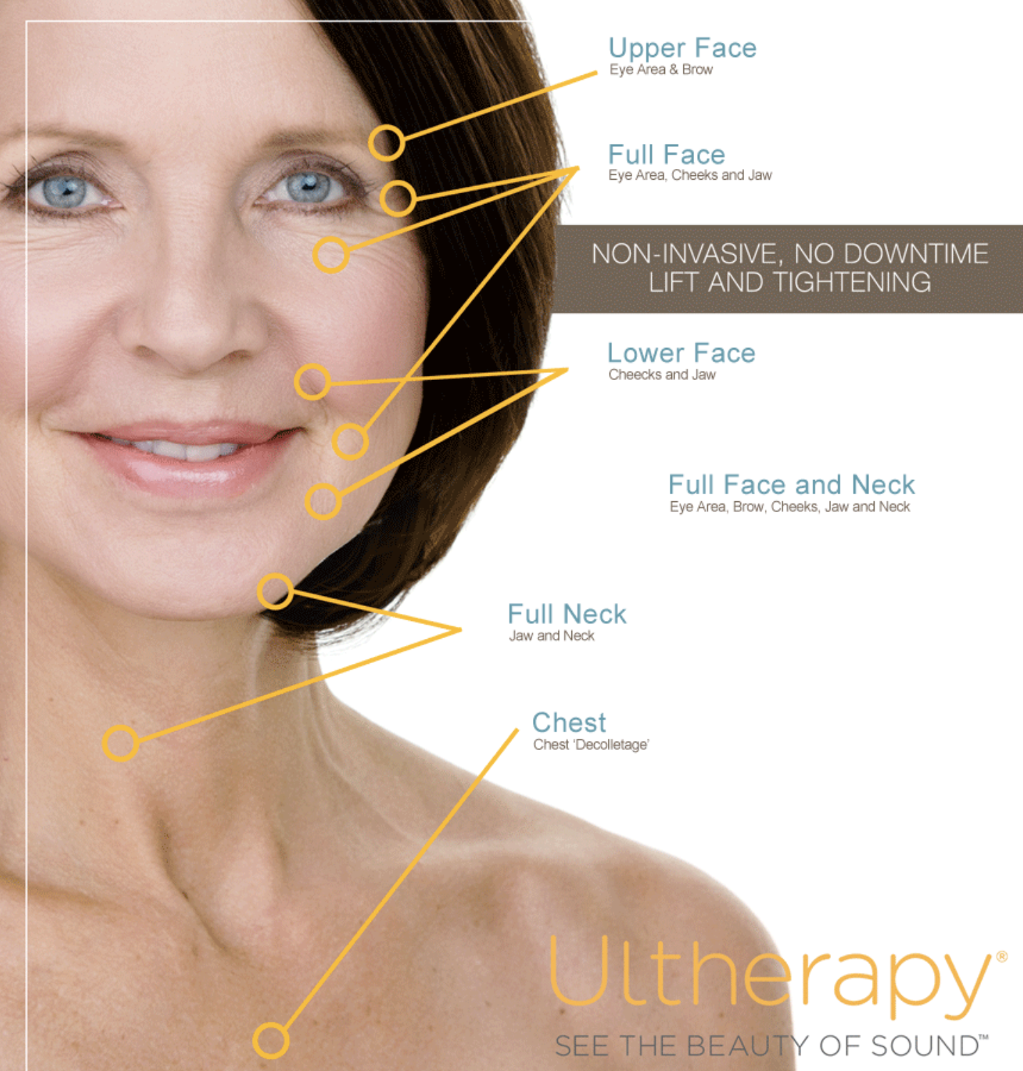 Ultherapy Treatment Areas.png