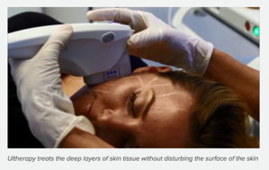 Ultratherapy Skin Tightening