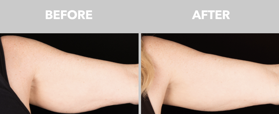 Upper Arm Fat Removal with Coolsculpting.png