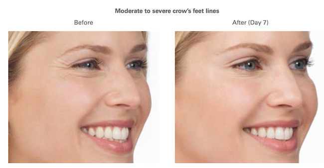 Botox Crow's Lines Before - After