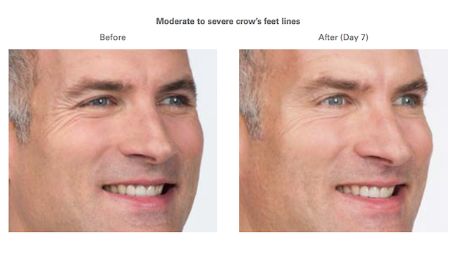 Botox before and after crow's feet