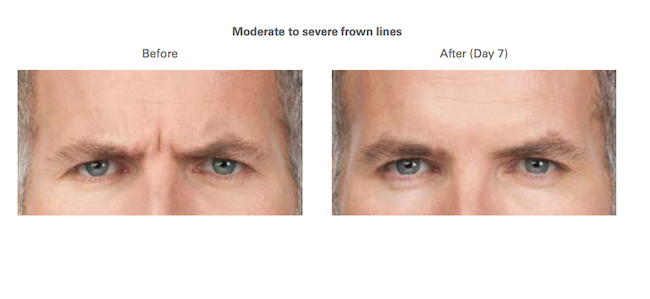 Frown Lines before after