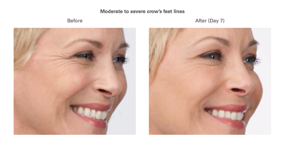Botox Crow's Feet Before After