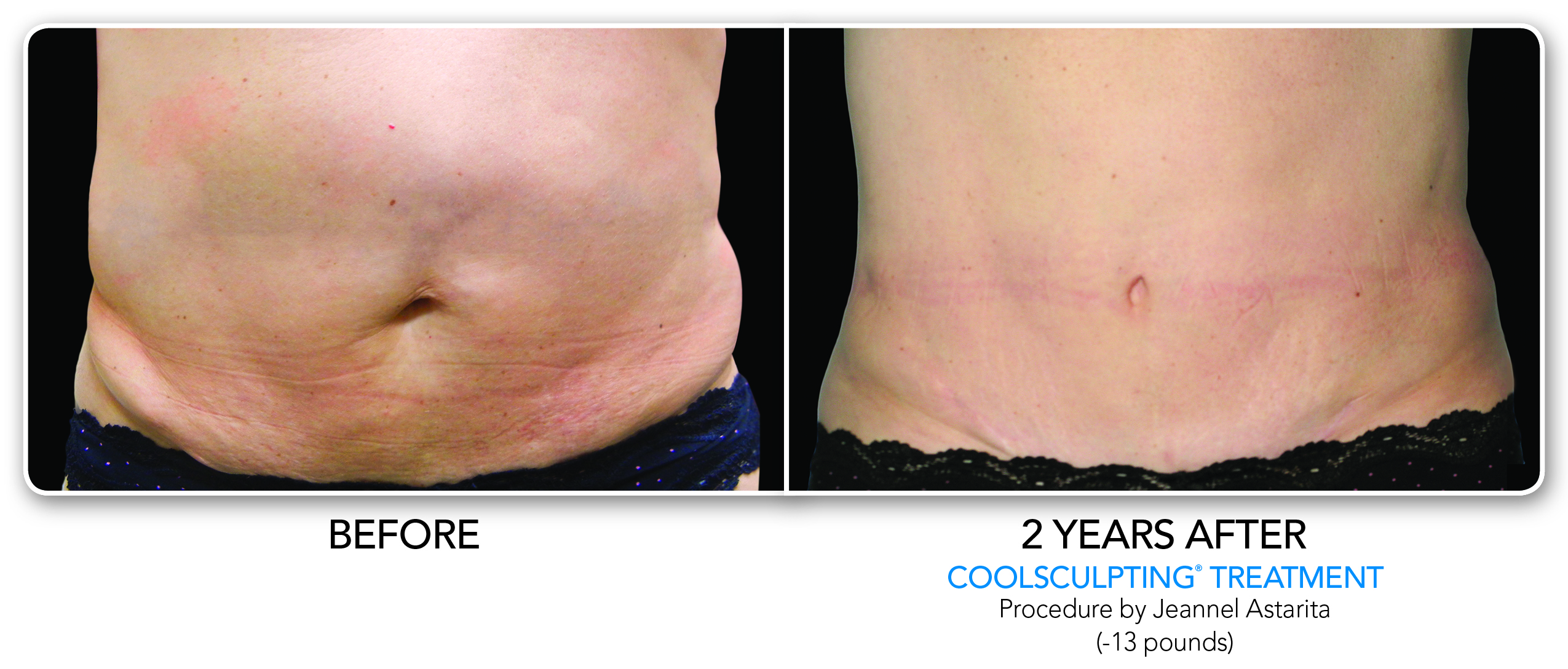CoolSculpting Treatment for Stomach