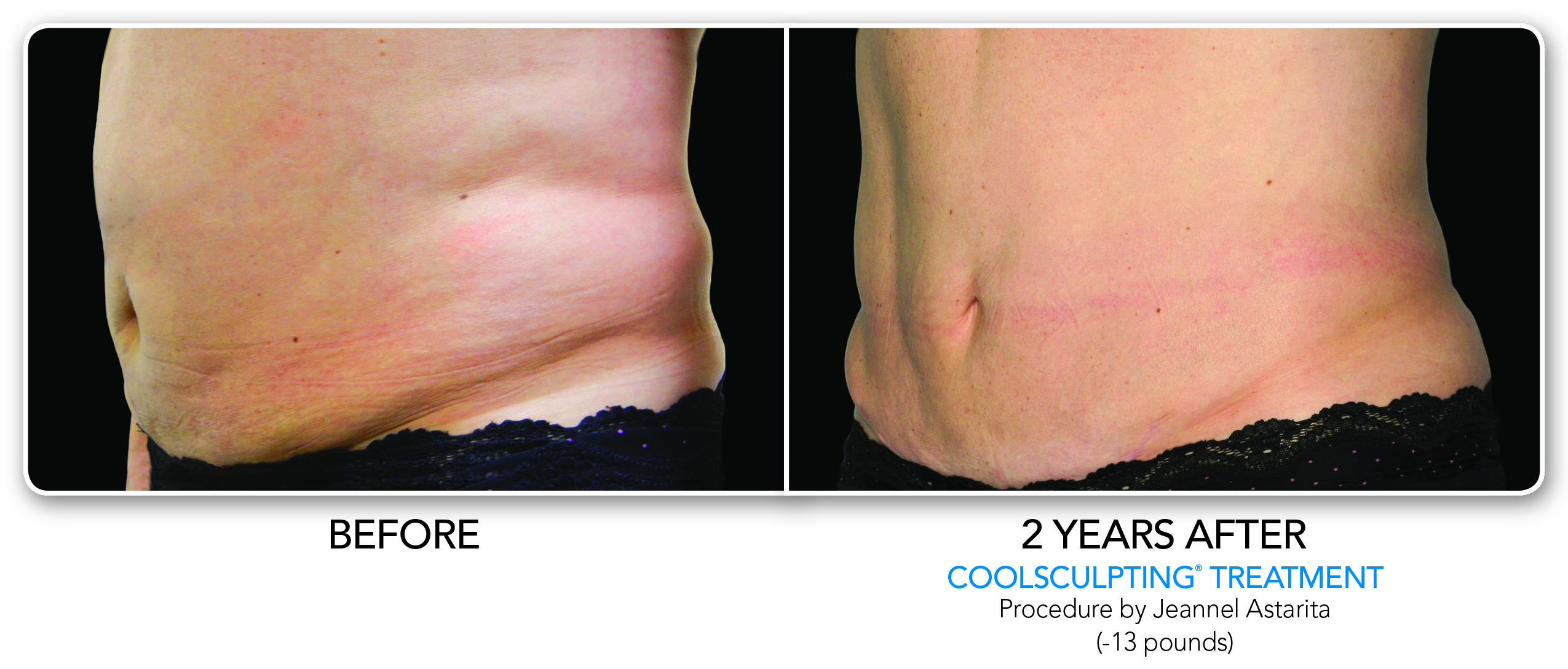 CoolSculpting Treatment Oblique