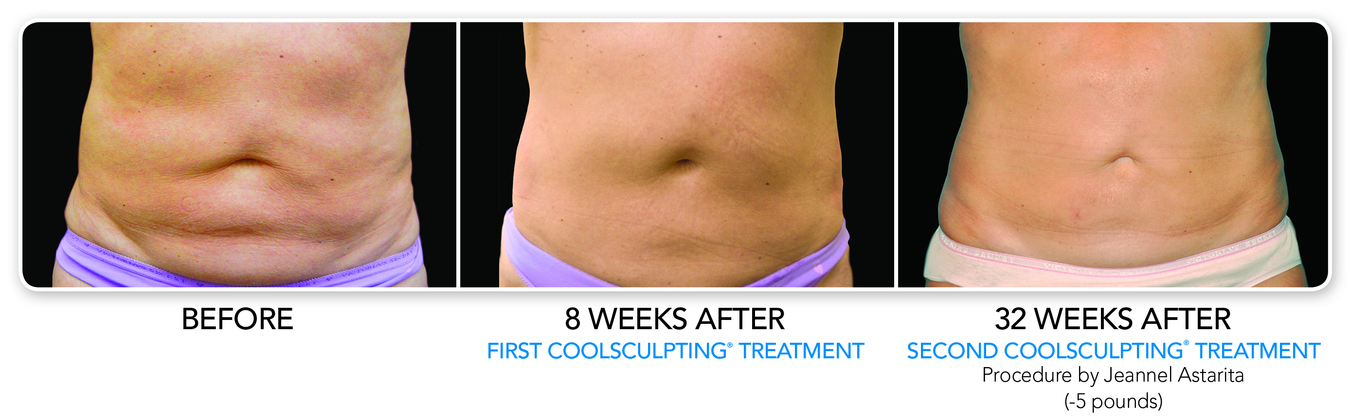 CoolSculpt Treatment 32 Weeks