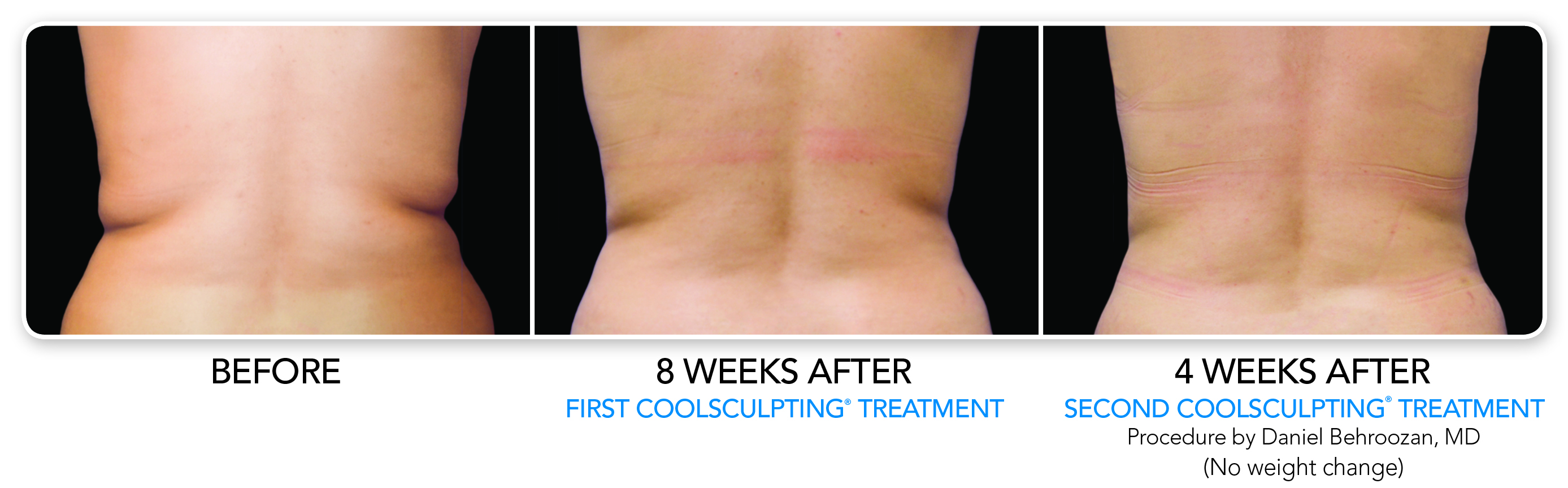 CoolSculpt Treatment