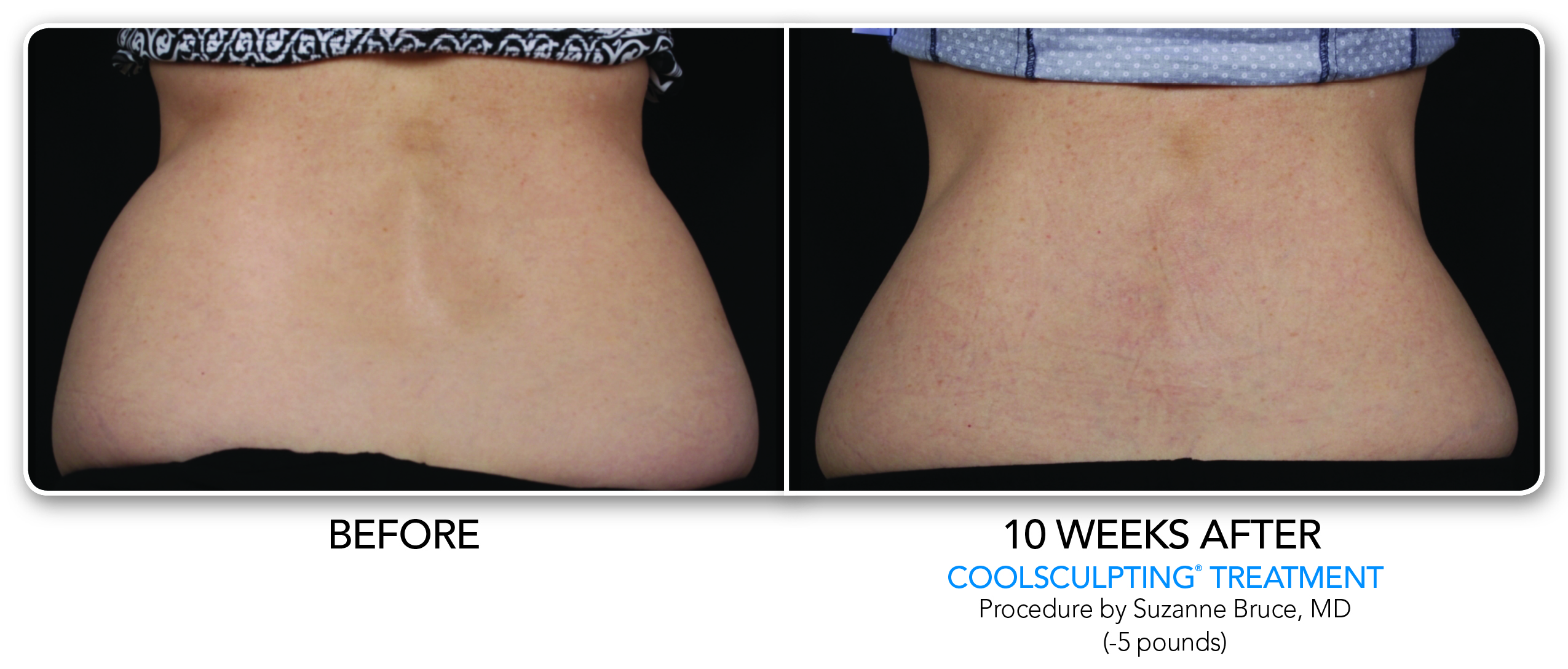 Coolsculpting B/A