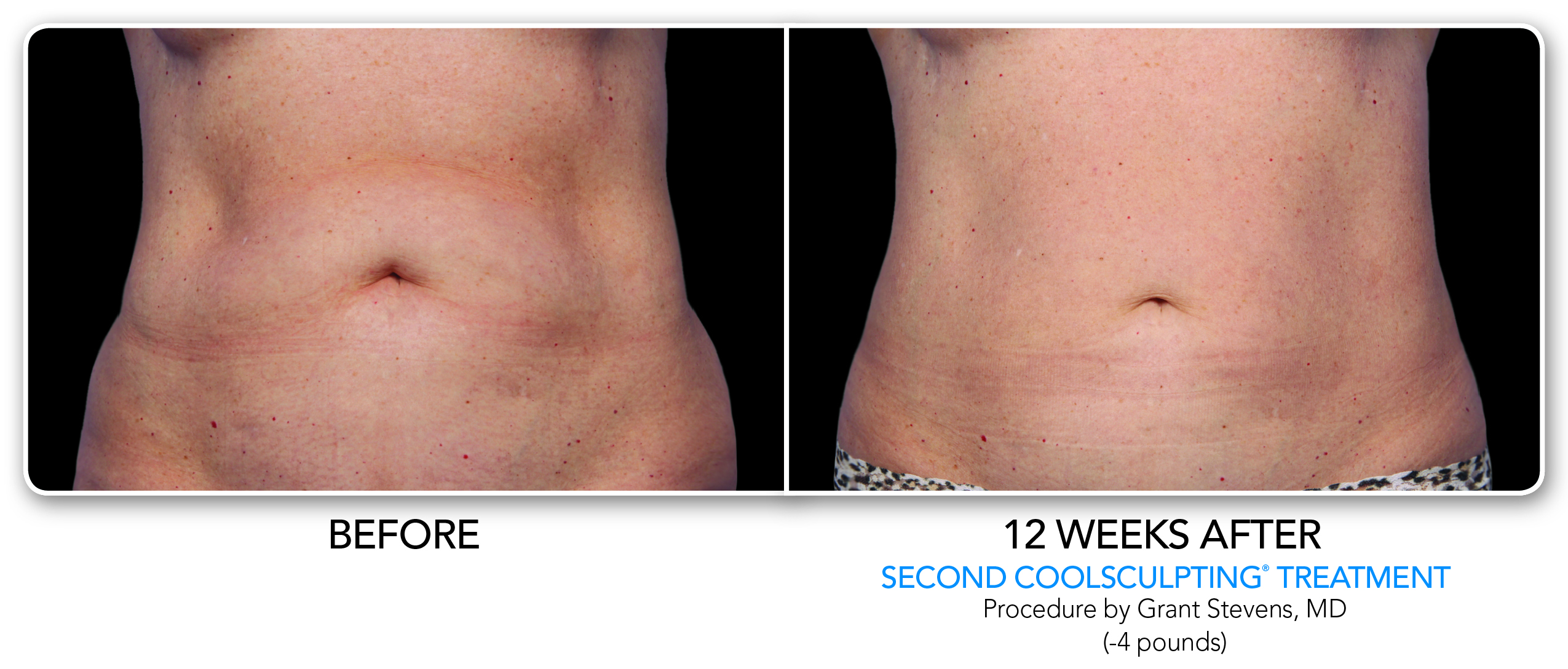 Coolsculpting Before Amp After