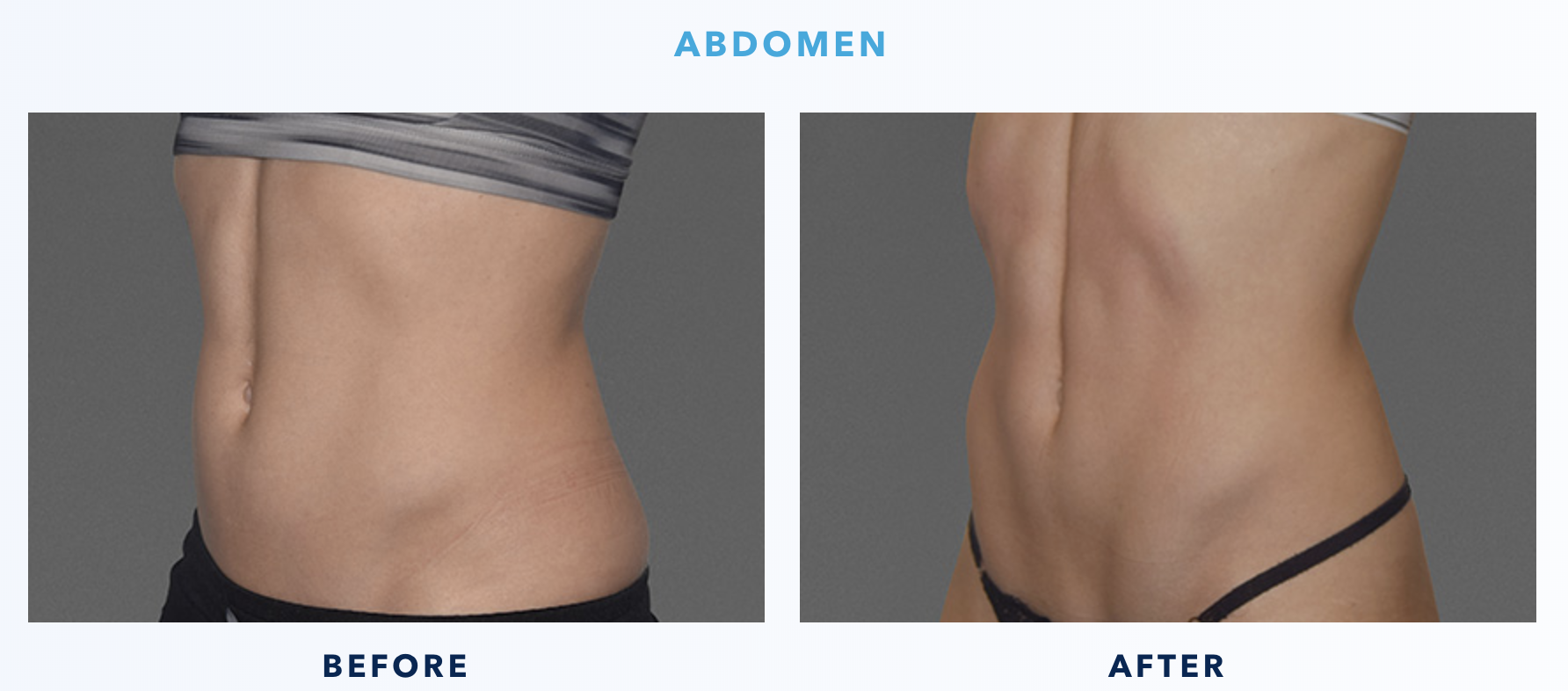 CoolTone Before & After Abdomen 3-2