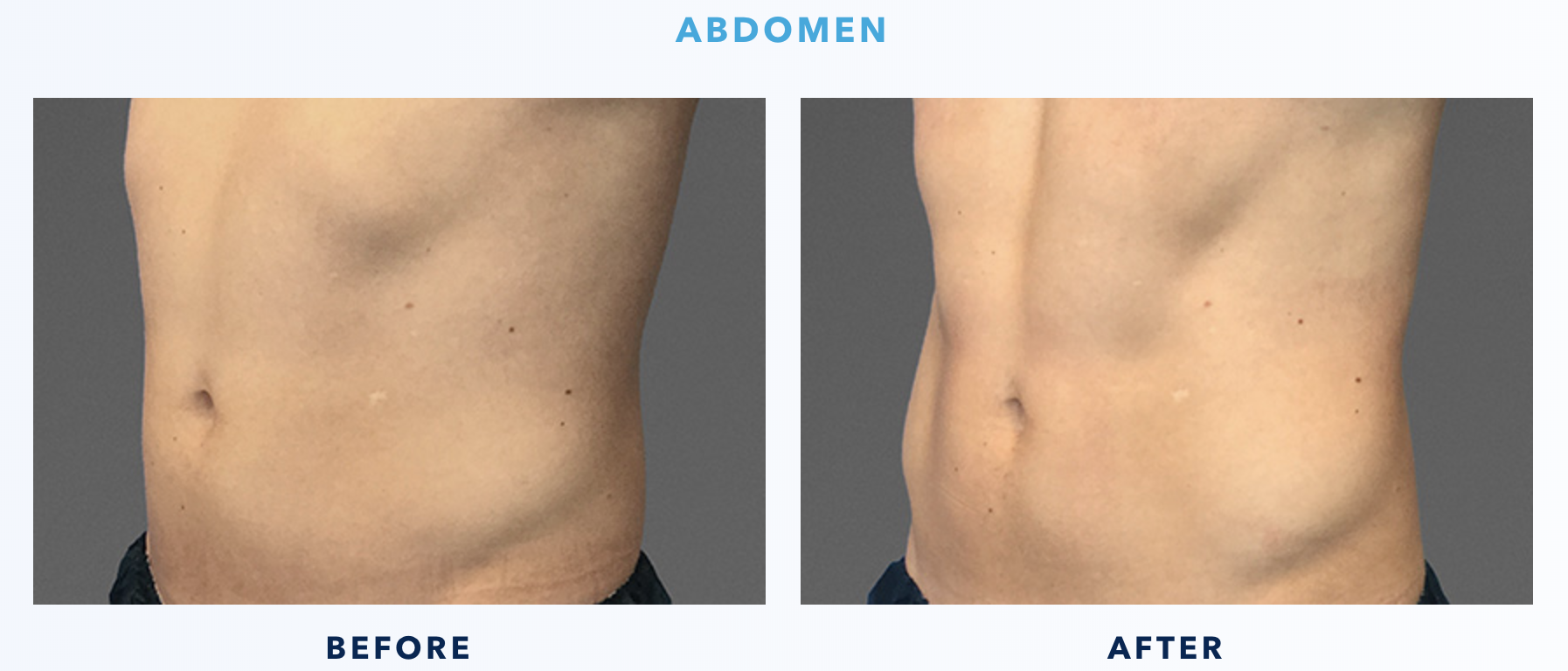 CoolTone Before & After Abdomen Male 3