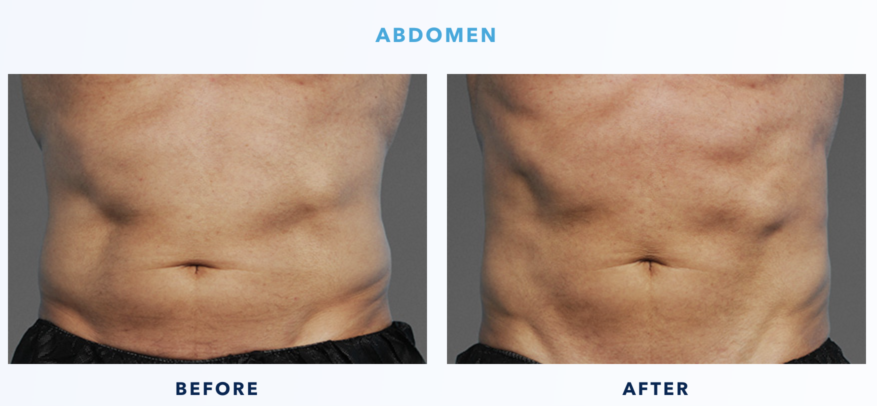 CoolTone Before & After Abdomen Male