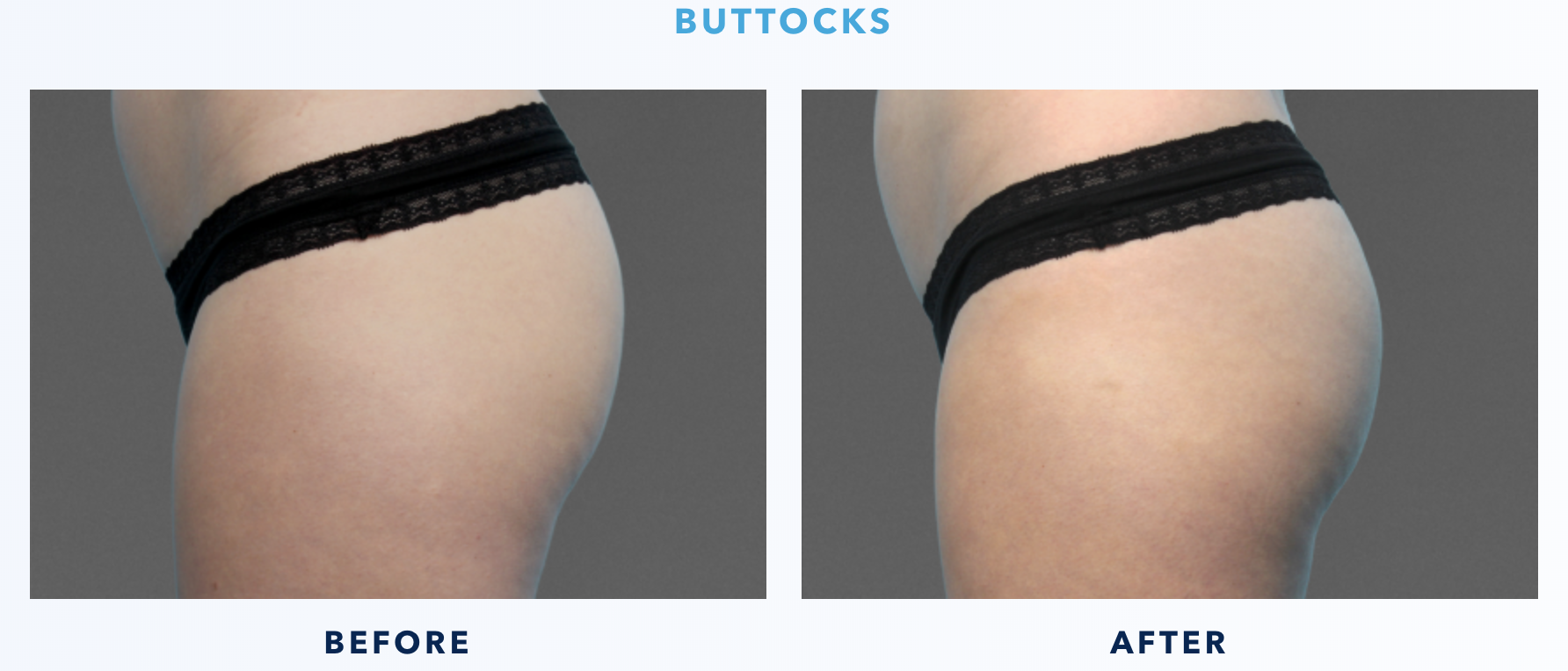CoolTone Before & After Buttocks 1-1