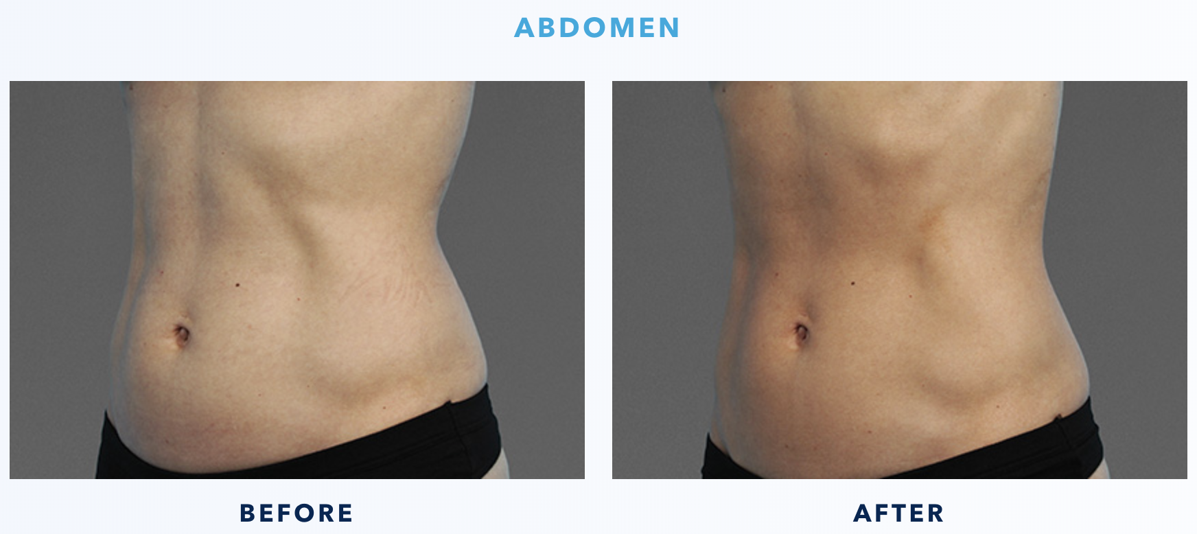 Cooltone Before & After Abdomen 1