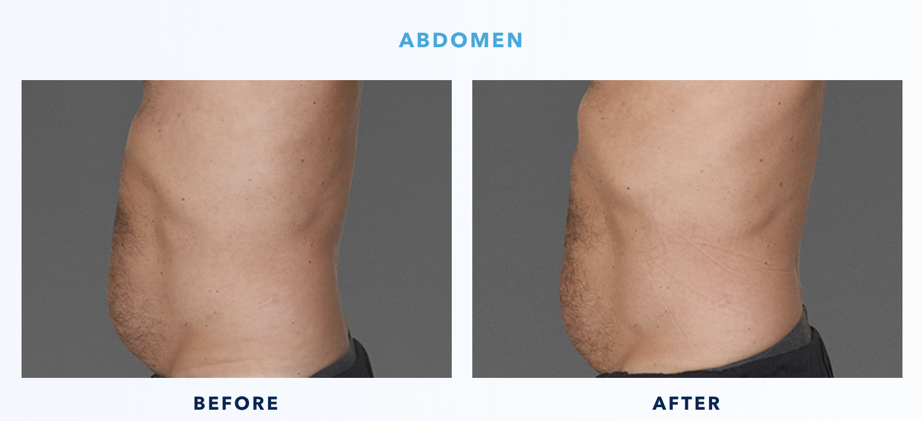 Cooltone Before & After Abdomen Male 2-2