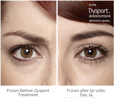 Dysport Before and After