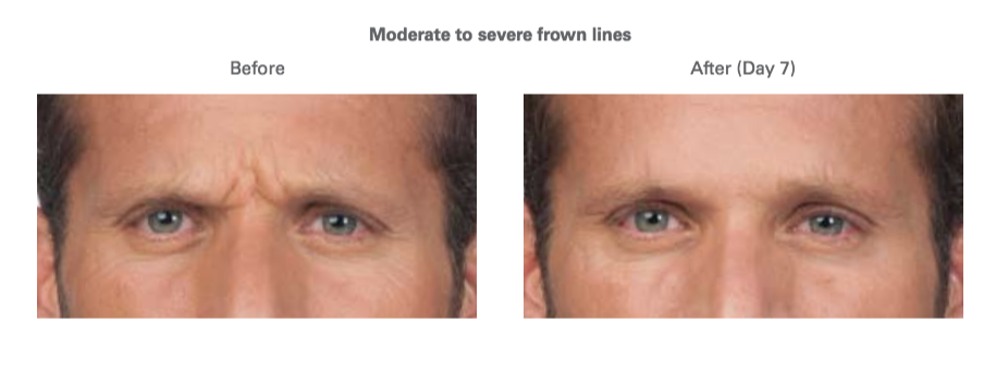Botox frown lines before and after