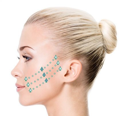 InstaLift Face With Sutures.jpg