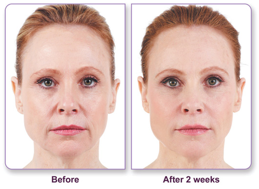 juvederm for wrinkles before and after