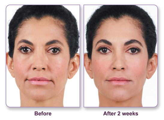 before and after Juvederm filler