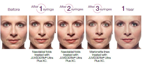Juvederm for facial wrinkles before and after