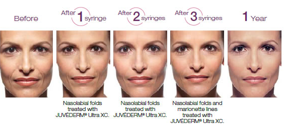 juvederm facial filler before and after