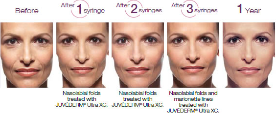 facial fillers before and after