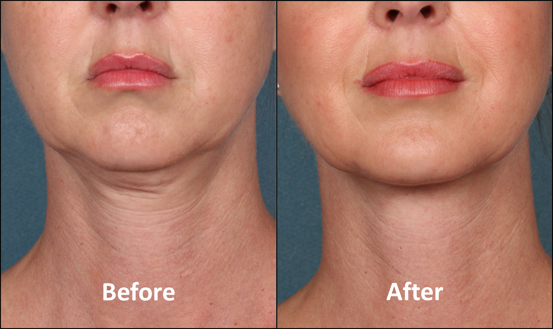 Kybella for women