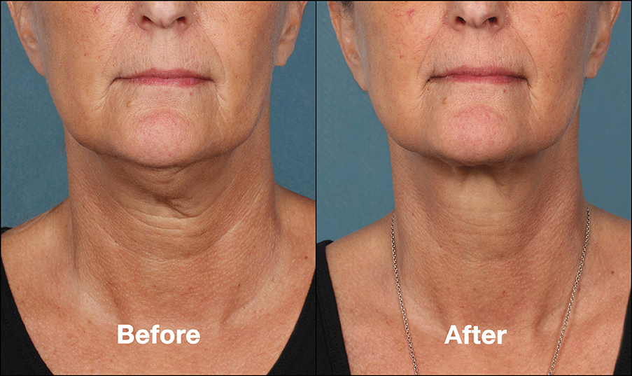 eliminate double chin